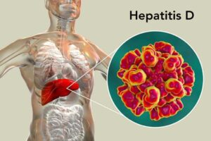 What hepatitis is?